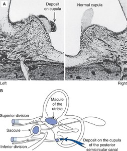 Figure 10–1. Basophilic deposits on the cupula in benign positional vertigo. A Histopathological section through the crista of the posterior semicircular canals of a patient who exhibited typical benign paroxysmal positional nystagmus in the head-hanging left position prior to death from unrelated causes. Attached to the cupula is a granular, basophilic staining deposit. B Drawing illustrating relationship between the macule of the utricle and the ampulla of the posterior semicircular canal when the head is erect. (From Schuknecht HF. Pathology of the Ear. Harvard University Press, Cambridge, 1993, with permission.)