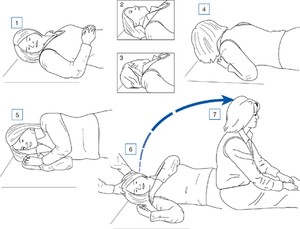 Figure 10–6. Maneuver for treating the horizontal canal variant of benign positional vertigo. While lying supine with the head turned toward the affected ear (right side in this case) the patient rolls across toward the unaffected side (1–3); the patient then continues the roll by moving through the prone position to the right lateral position (3–5); finally the patient returns to the sitting position (6–7). (From Fife TD et al. Quality Standards Subcommittee, American Academy of Neurology. Practice parameter: therapies for benign paroxysmal positional vertigo (an evidence-based review): report of the Quality Standards Subcommittee of the American Academy of Neurology. Neurology. 2008;70:2067 with permission).