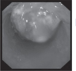 Fig. 7.1(d) Endoscopic view of oesophageal carcinoma (note active oozing of blood).