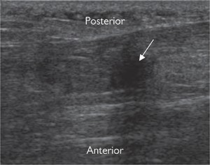 Fig. 11.30 Longitudinal US image. Partial-thickness tear of the Achilles tendon. There is fusiform tendon swelling with a focal defect (arrow) anteriorly; intact posterior tendon fibres are present.