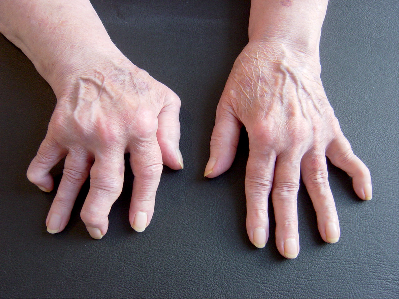 arthritis paper research rheumatoid Rheumatoid arthritis (ra, rheumatoid disease) is an autoimmune disorder and can affect many joints, other organs, and the whole body ra is often marked by flares and remissions or times when symptoms are more pronounced, then dissipate.