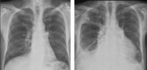 Fig 3.14 Two chest x-rays of the same patient, the one on the right was taken 6 months after the one on the left. On the later image, a pericardial effusion has expanded the cardiac shadow and given it a 'globular' shape.