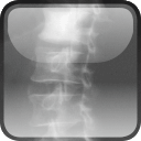 Spine ImagingA Case-Based Guide to Imaging and Management$